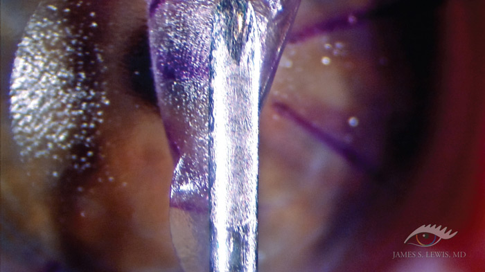 sbk os2 Very Thin Flap LASIK using the Moria One Use Plus (OUP) 90 Microkeratome