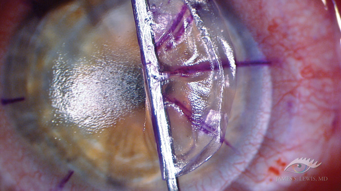 sbk os6 Very Thin Flap LASIK using the Moria One Use Plus (OUP) 90 Microkeratome