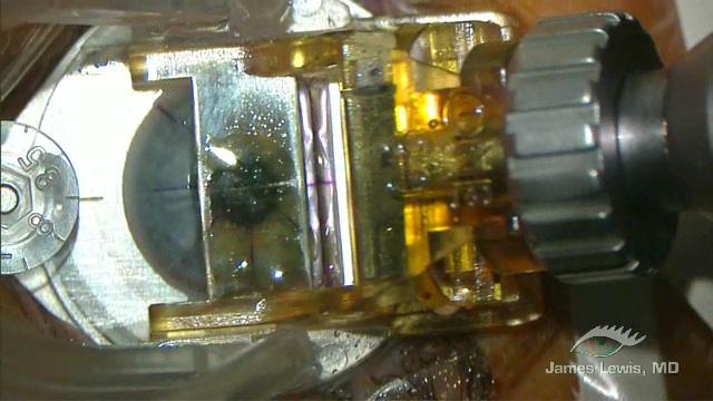 SBK-LASIK 90 H 3